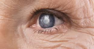 Oeil atteint d'un glaucome